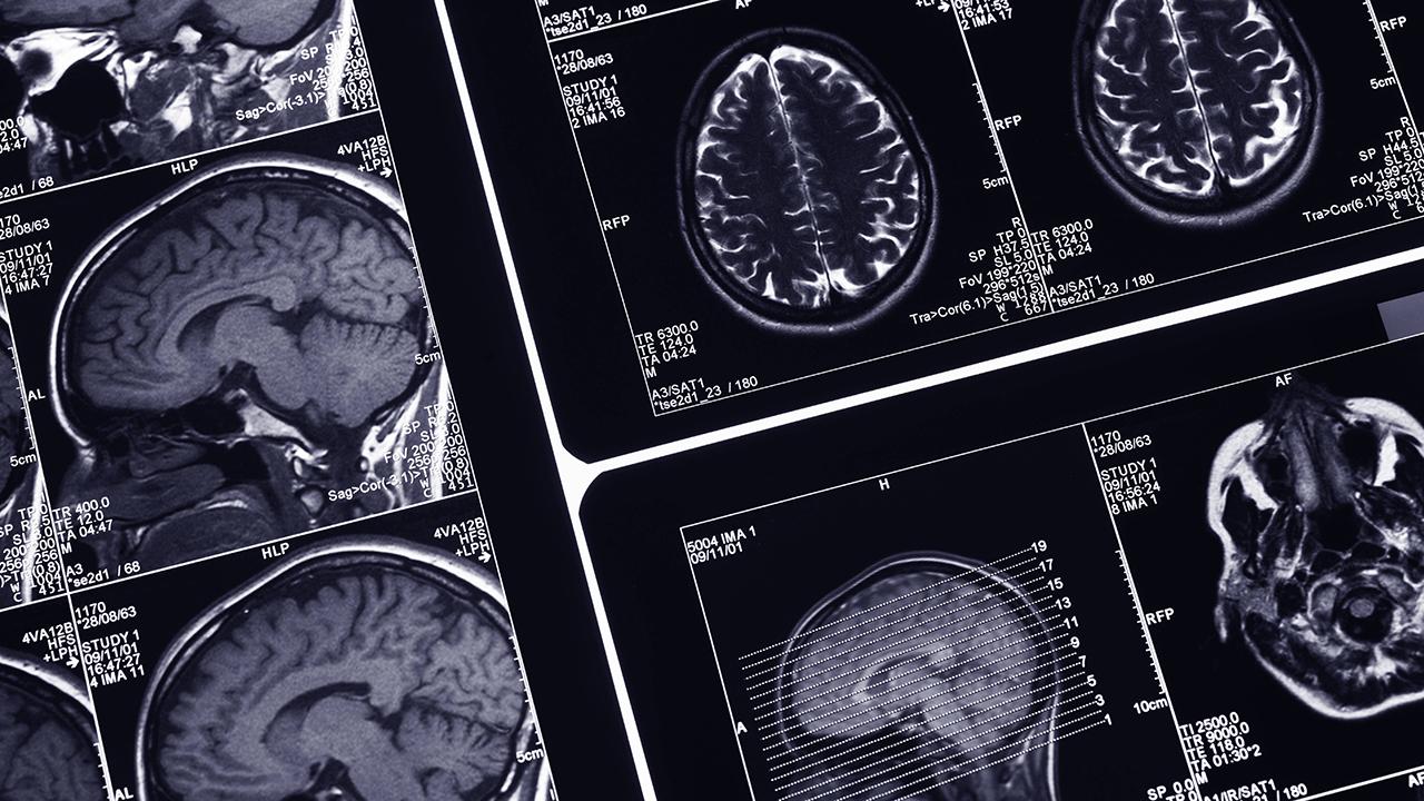 Wissenschaft - Die Todeswelle im Gehirn   radioeins